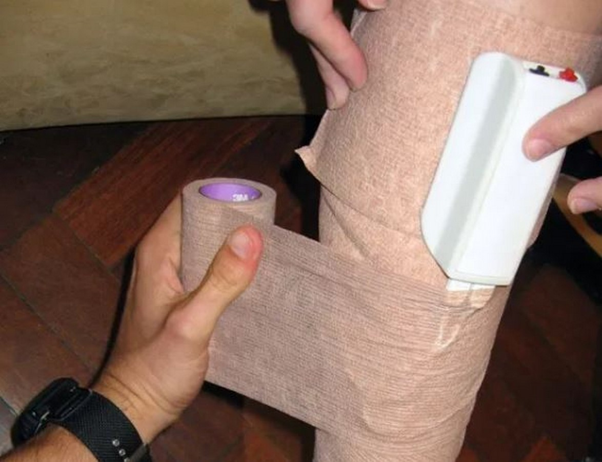 Wound Care Device - Sheet2